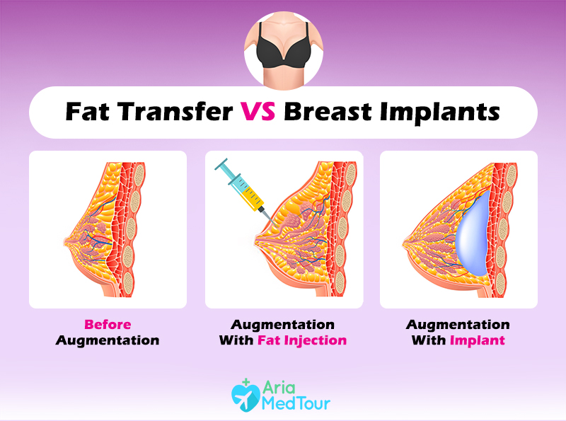 fat transfer vs breast implants