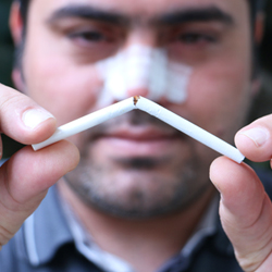 man with a splint on his nose breaking a cigarette after his nose job showing that he does not smoke after rhinoplasty