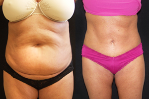 gastric sleeve before after photo