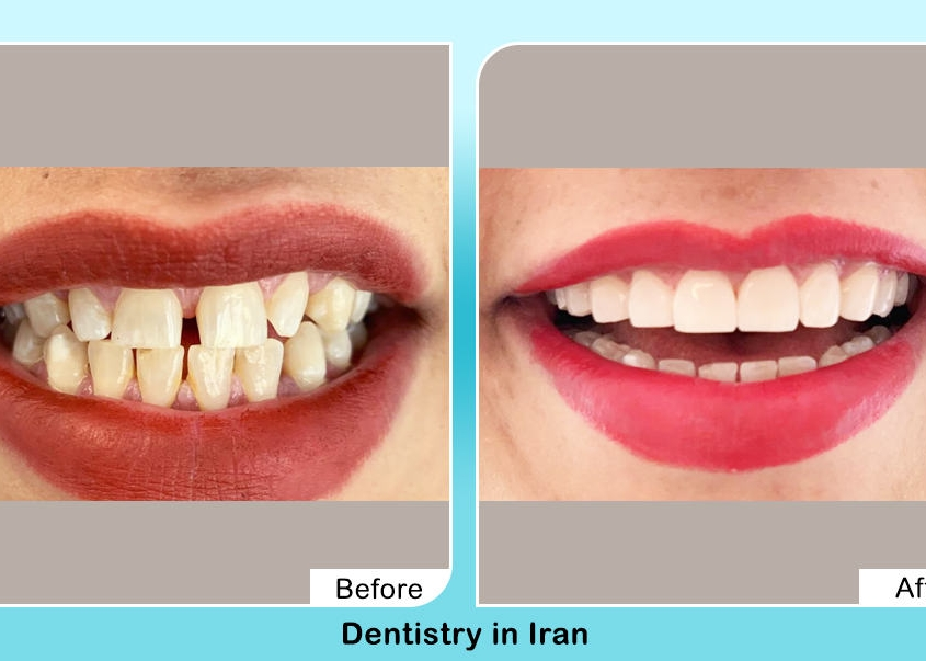 Hollywood smile before after in Iran