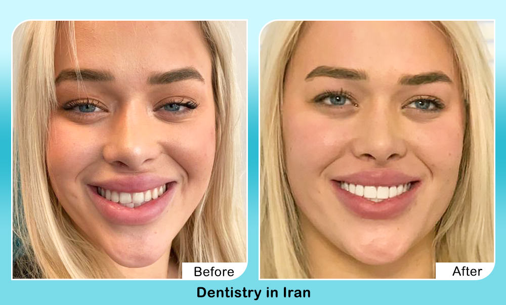 Cosmetic dentisrty by AriaMedTour before after