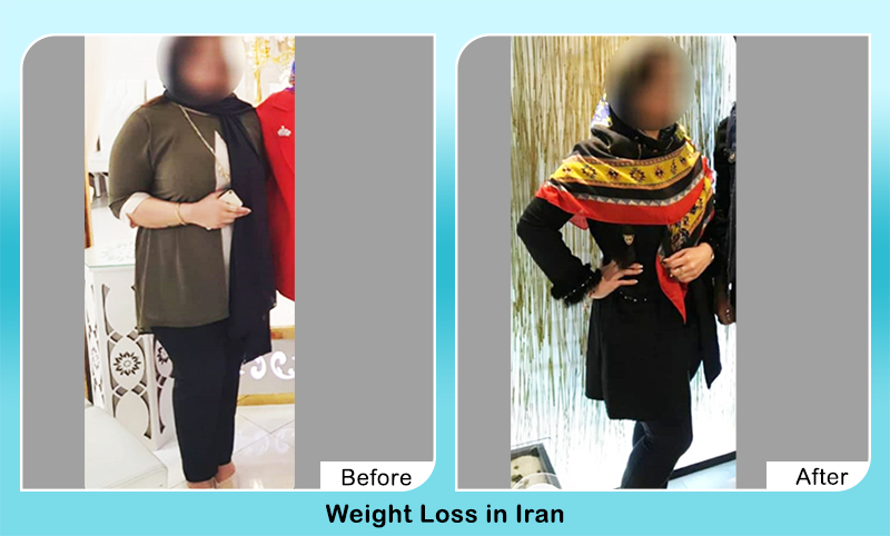 weight loss surgery before and after in Iran female patient