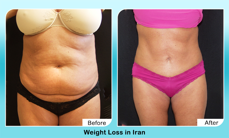 Weight loss suregry by Iranian doctor results up close