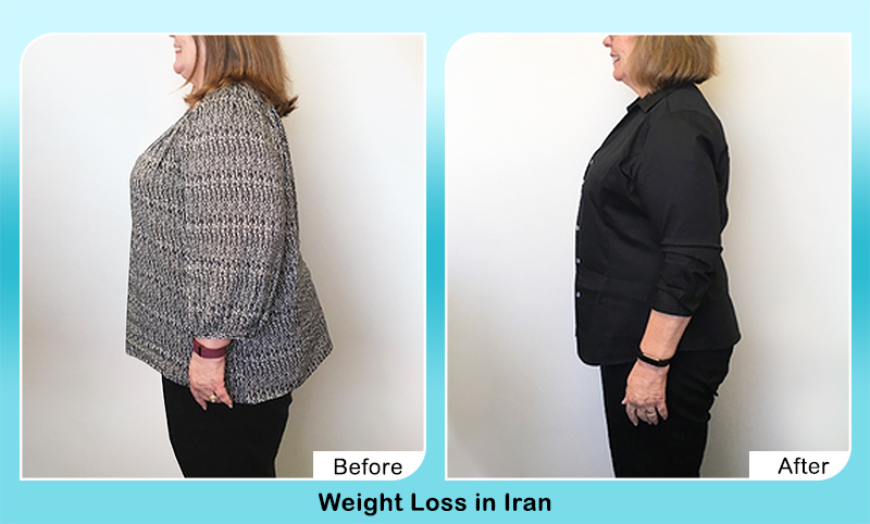 weight loss surgery before and after in Iran