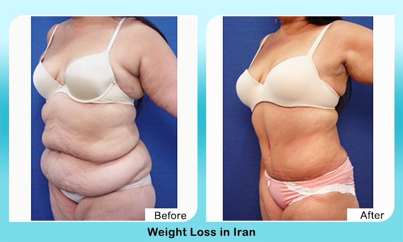 weight loss surgery before and after in Iran results