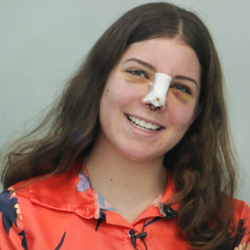 rhinoplasty patient smiling to the camera while her swelling and bruies are obvious during her recovery