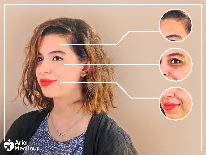 young woman with youthful face with 3 small images showing signs of aging on her face before having Botox or fillers