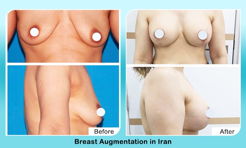 breast augmentation in Iran before after