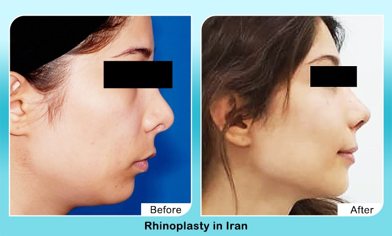 rhinoplasty female patient iran tehran