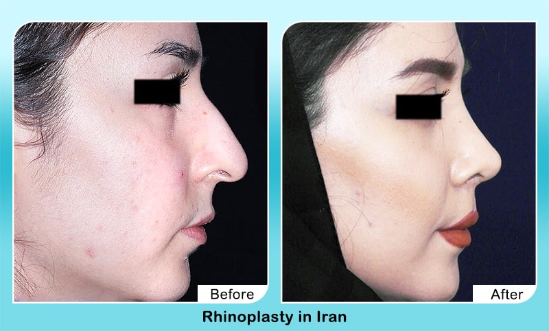 rhinoplasty in Iran before after surgery droopy nose