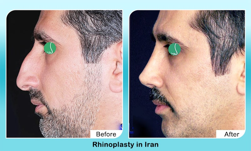 rhinoplasty in Iran before after surgery for men