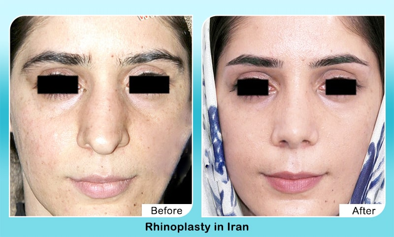 severe droopy nose rhinoplasty in iran