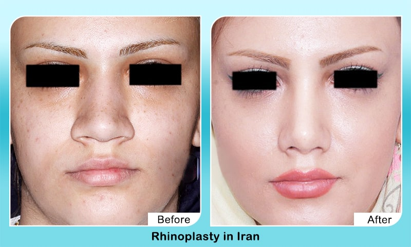 Nose job in iran before and after