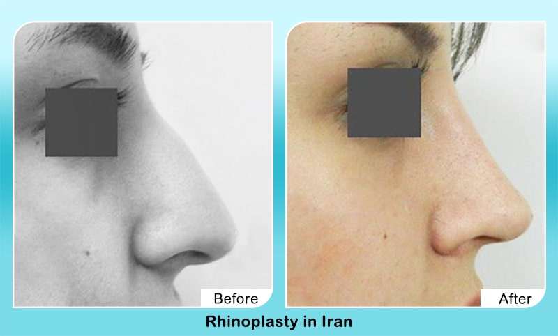 bony nose surgery tehran before after