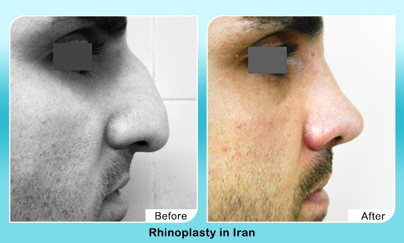 Dorsal hump in Iran before after