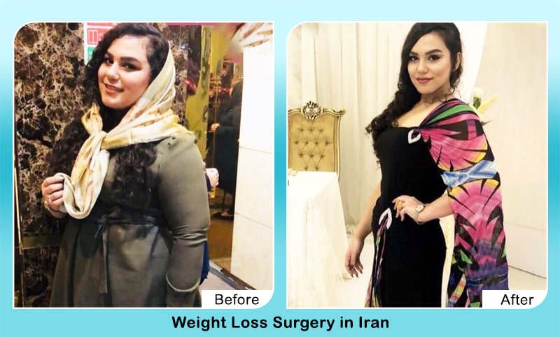 weight loss Before After iran good results