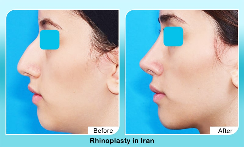 excellent nose job before after in iran