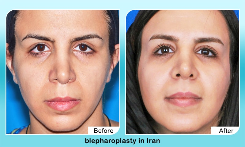 rhinoplasty in Iran before after surgery results