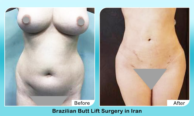 Body sculpting in iran before and after