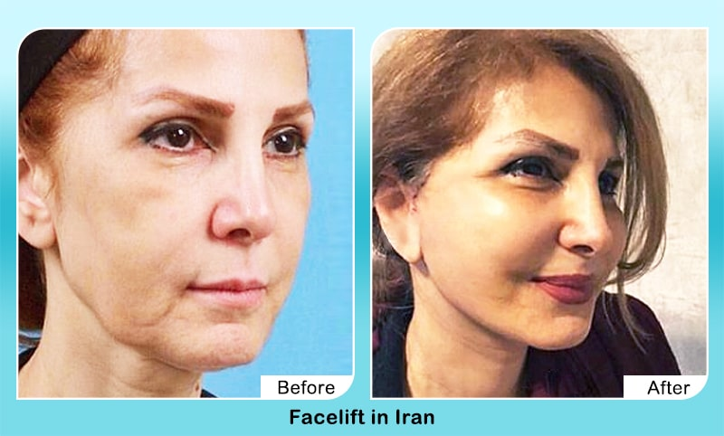face lift surgery Iran before after results
