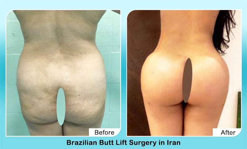 butt enhancement in iran before after
