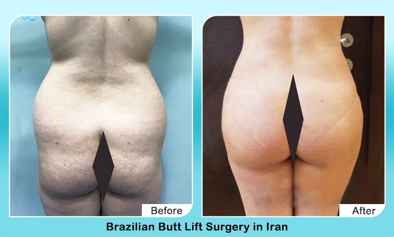 Butt lift in iran before after