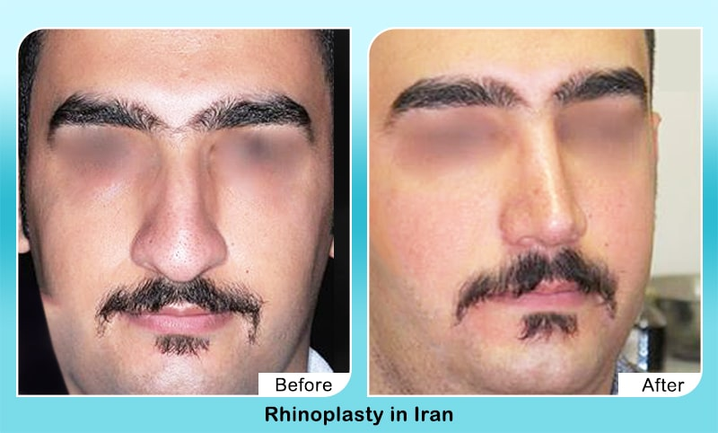 Nose job for men in Iran by dr yahyavi