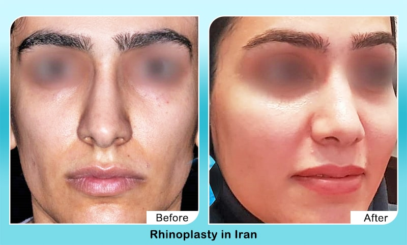 Fleshy nose job before after dr yahyavi