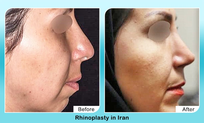 rhinoplasty dr yahyavi before after