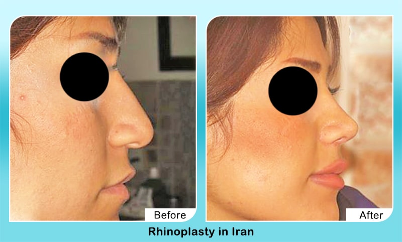 rhinoplasty before after in Iran
