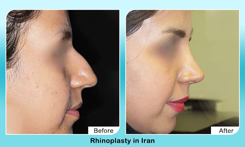 Bony nose job in Iran before and after by dr Yahyavi