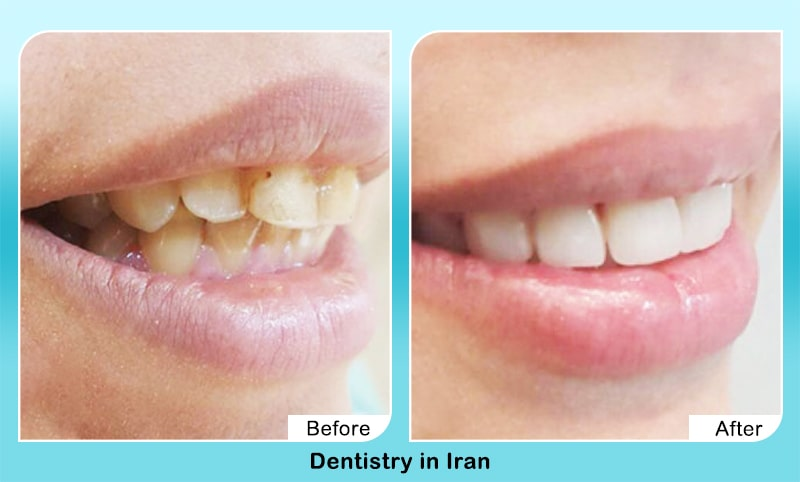 Cosmetic dentistry before after iranaian dentist