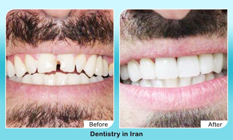 Dental veneers in Iran before after