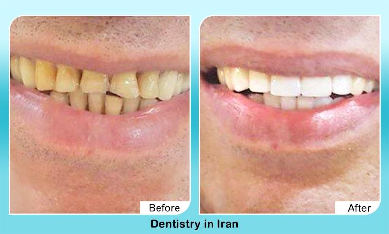 veneers in Iran before after