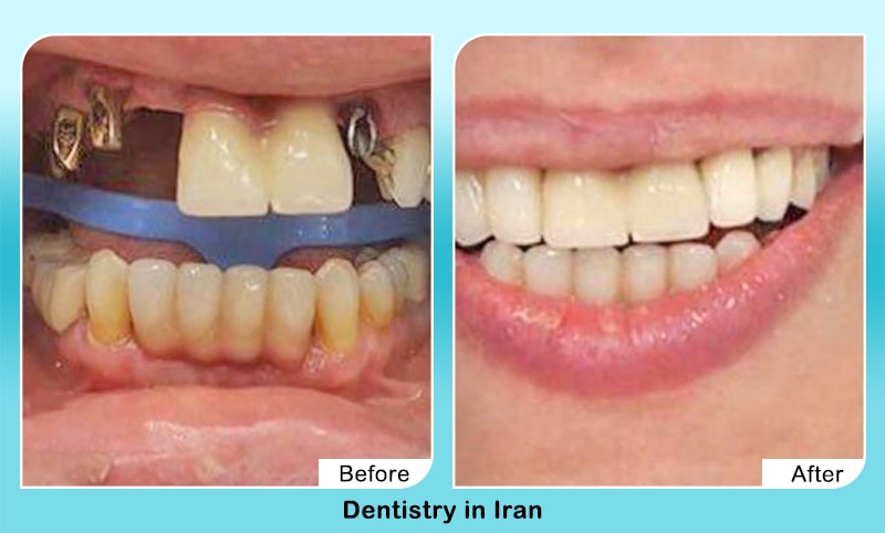 Dental implants in Iran before after