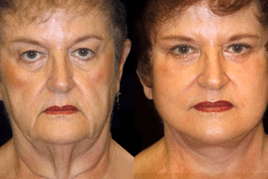 facelift before after photos