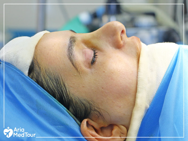 a patient who has been put to sleep before rhinoplasty