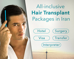 hair transplant packages in iran