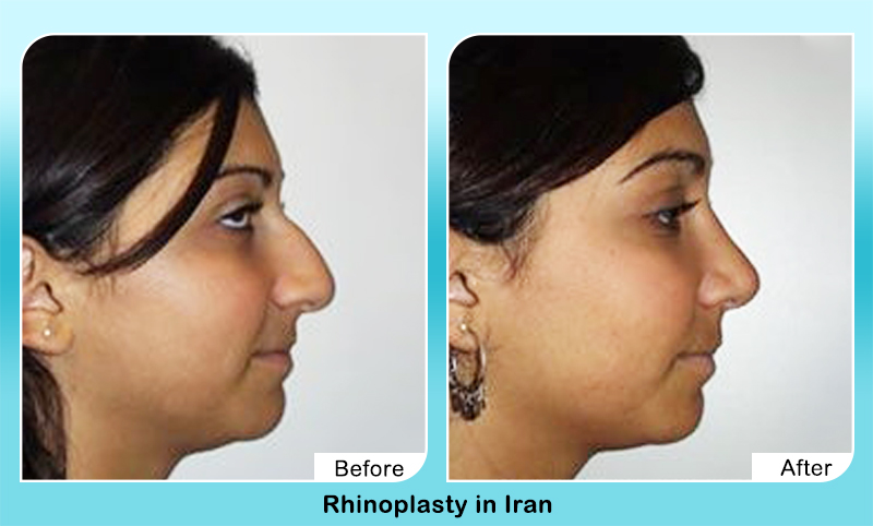 Fleshy droopy nose job before after