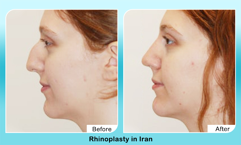 Nose hump removal surgery before after photos