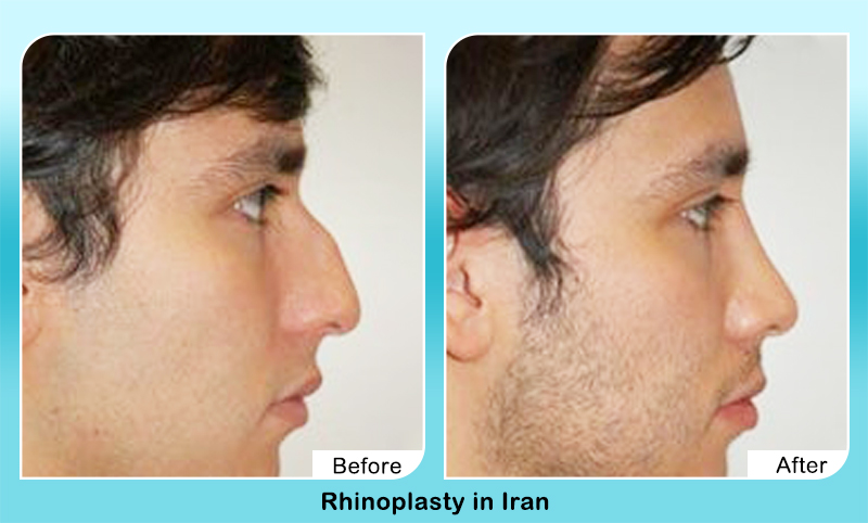 Nasal hump removal surgery before after for men in Iran