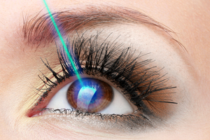 LASIK eye surgery in iran