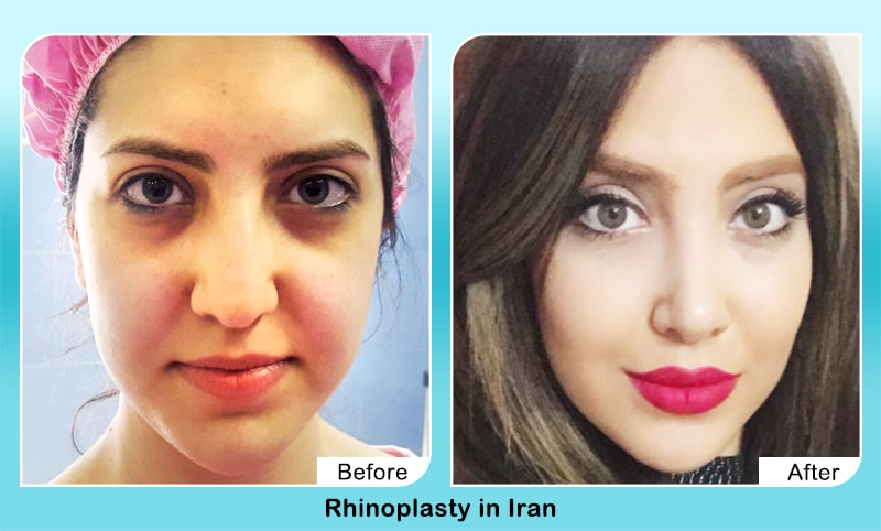 nose job before after in Iran