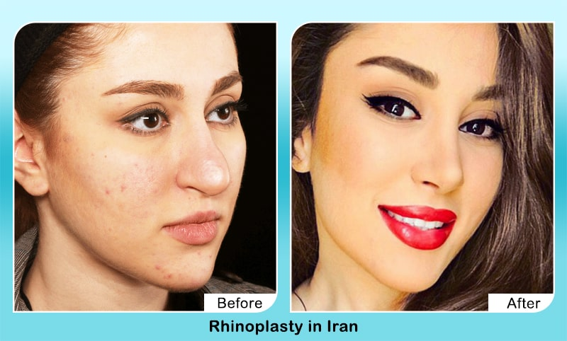 nose job before after in Iran is it good