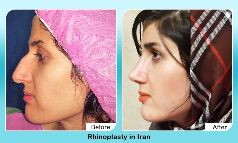 severe dorsal hump removal surgery before after in iran