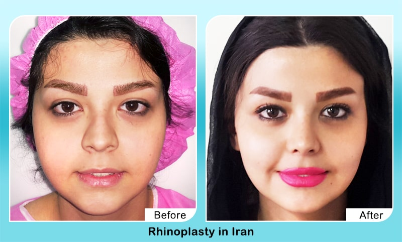 Dolly nose job before after iranian surgeon
