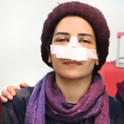 nose job patient from Iraq