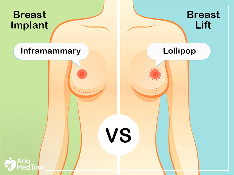 Breast Implant and breast lift- Different scarring