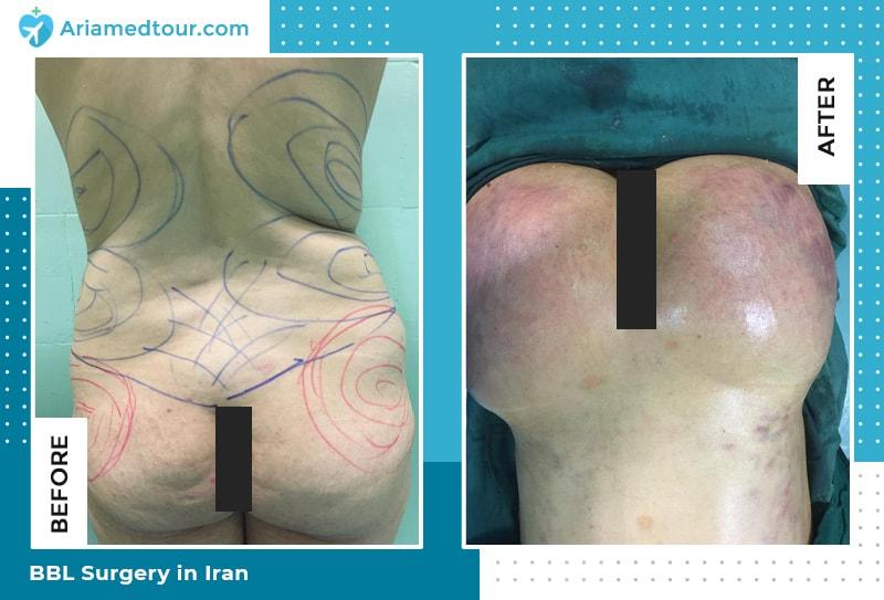 brazilian butt lift in iran dr shahbazi