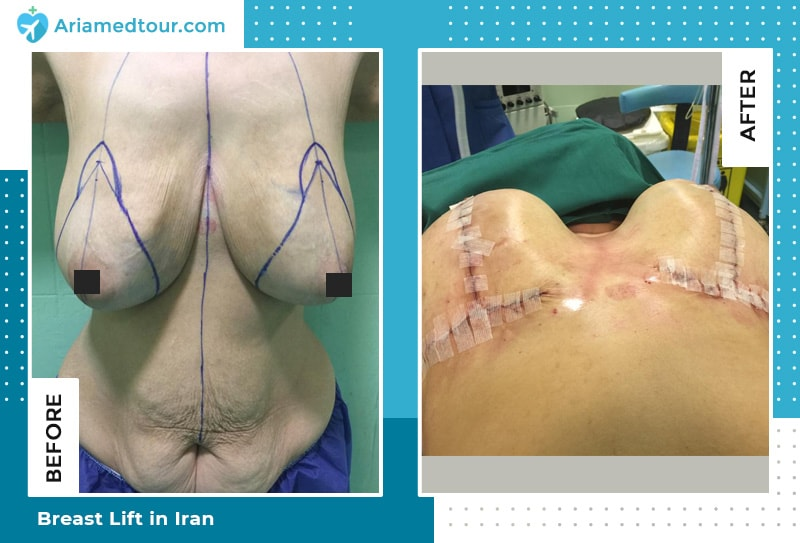 breast lift and tummy tuck in iran by dr shahbazi